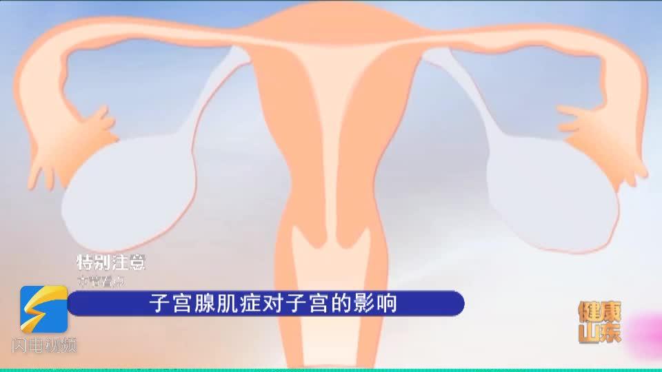 什么是子宫腺肌症?