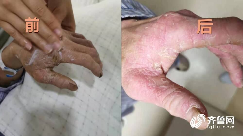 暖心!老人双手干裂布满老茧 山大二院这位护士这样做……